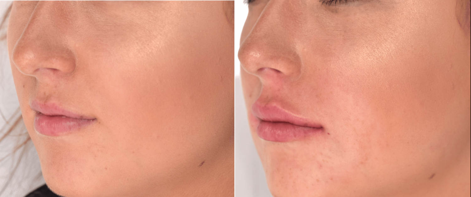 Lip Filler Training Courses | 1 Day Lip Filler Injection