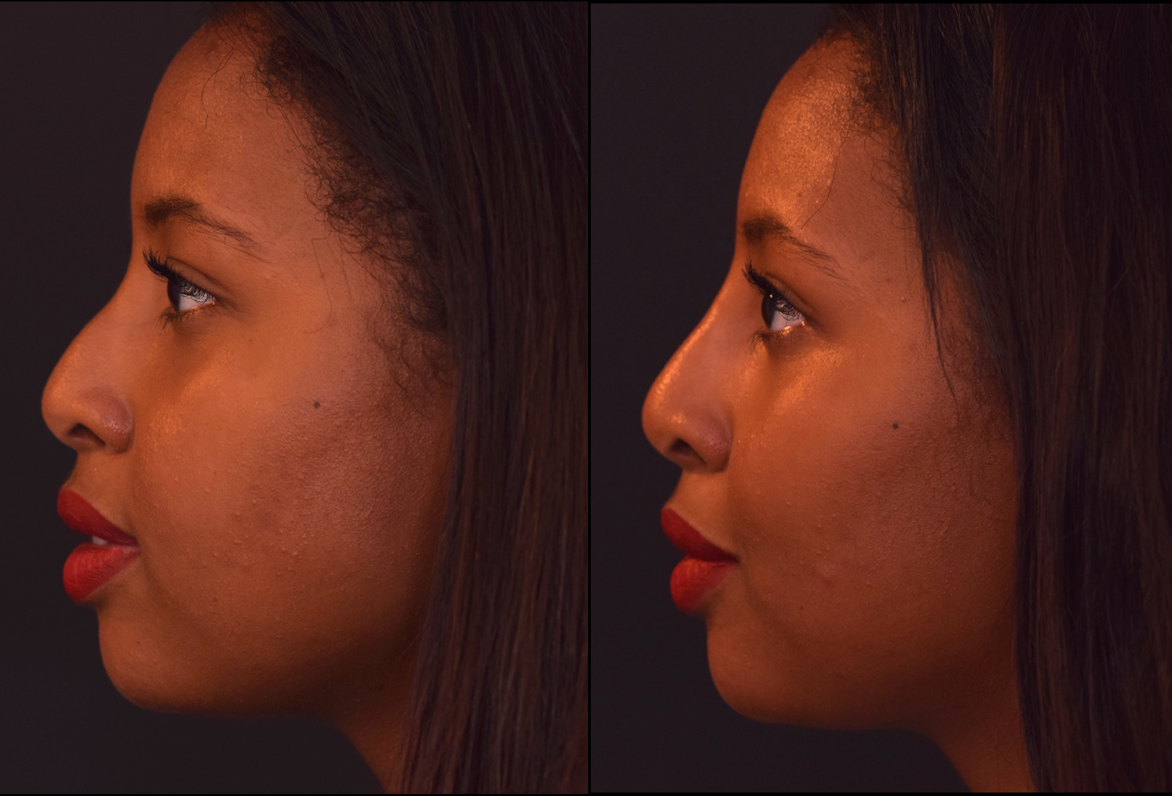 Non Surgical Rhinoplasty Training Courses - Nose Filler Training in